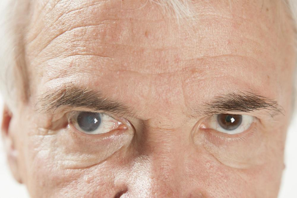 Man experiencing cataracts in his left eye